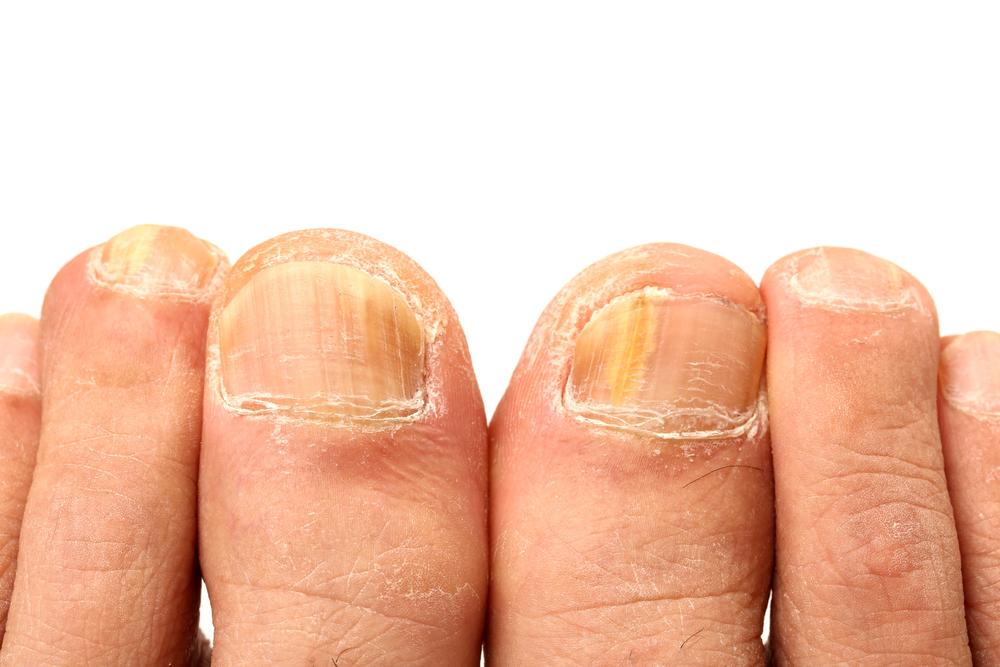 Co je plísňová infekce nehtů?